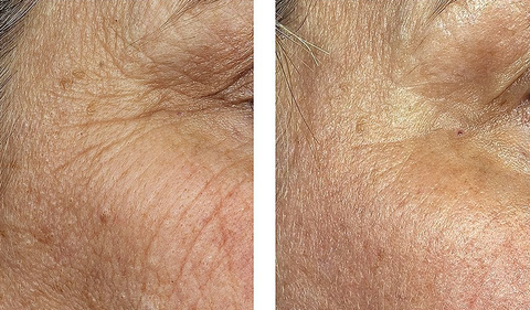 CO2 for WRINKLES and BROWN SPOTS | Anjali MD Dermatology