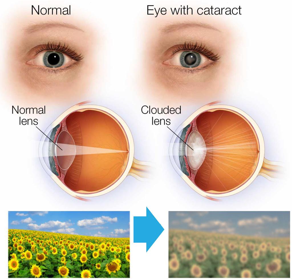Glaucoma And Cataracts Glaucoma Associates Of Texas
