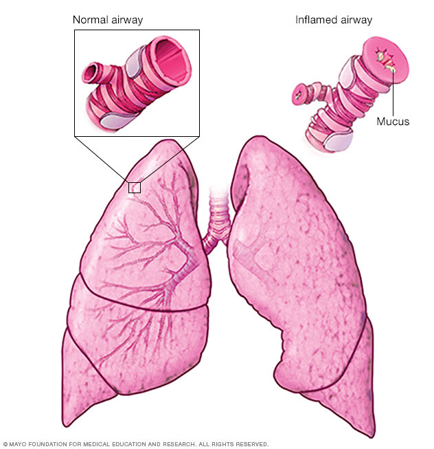 Occupational asthma Disease Reference Guide - Drugs.com