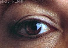 Fotografía de un ojo