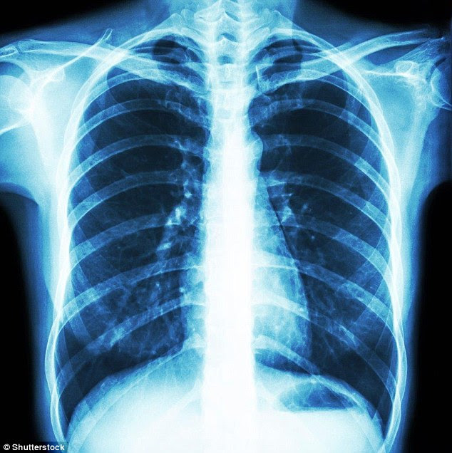 X-ray of a healthy chest. Doctors discovered Ben's tumour was wrapped around vital organs and meant part of his right lung and some of the lining of his heart had to be cut away too