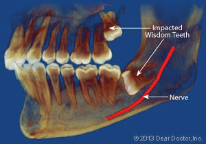 Cost Of Ct Scan For Wisdom Teeth - ct scan machine