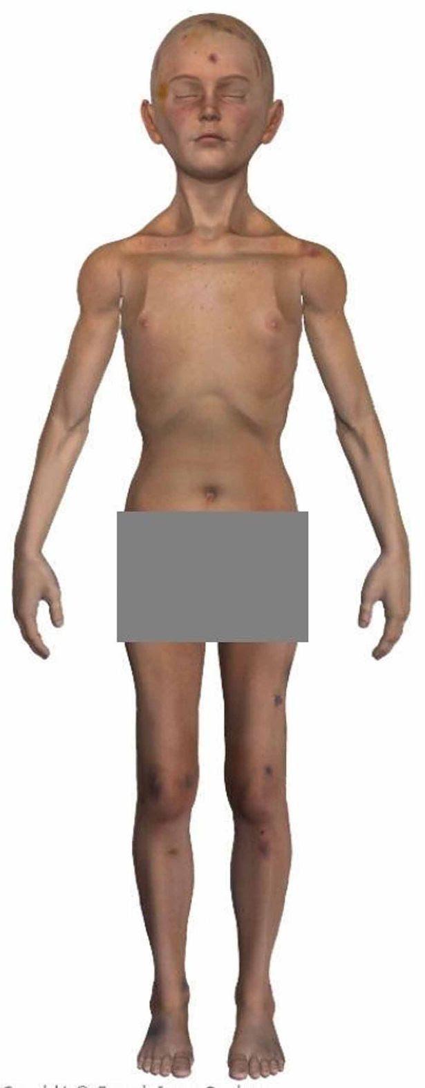 Daniel Pelka 2D front image of bruising