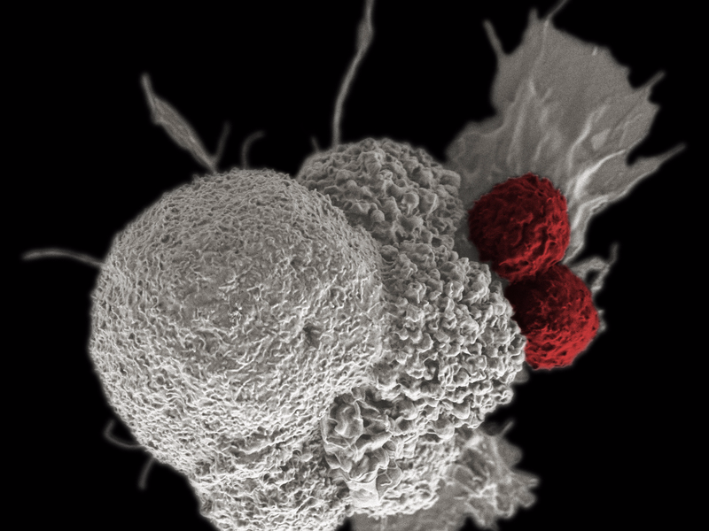 A cancer cell (white) being attacked by two cytotoxic T cells (red), part of a natural immune response triggered by immunotherapy. REUTERS/NIH