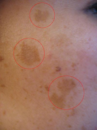 Melasma, Chloasma Pictures (Dark Skin Pigmentation on Face ...