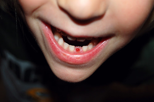 See my new tooth!