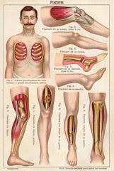 anatomie fractures 2