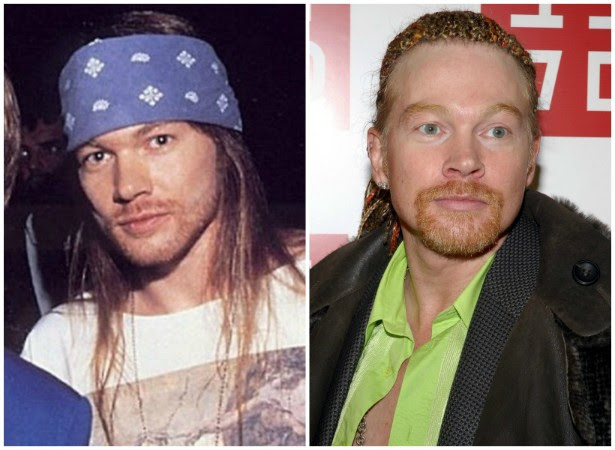 Axl Rose, vocalista do Guns N' Roses, nos anos 90 (à esq.) e em novembro de 2006. (Foto: Instagram e Getty Images)