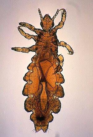 Pediculus humanus var capitis AKA head louse; ...