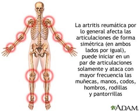 acido urico dieta pdf que enfermedades ocasiona el acido urico acido urico normal en una persona