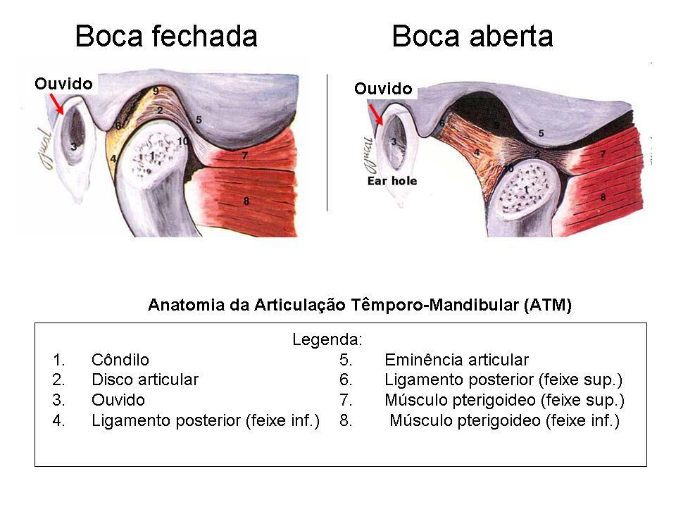 http://blog.marcelomatos.com/wp-content/uploads/2010/03/Anatomia-ATM.jpg