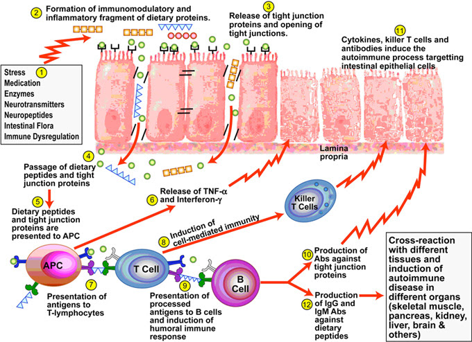 Autoimmune Summit Highlights | San Jose Functional Medicine
