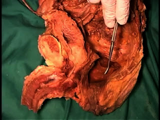 Picture from Anatomy Dissection 08 - Split Pelvis video