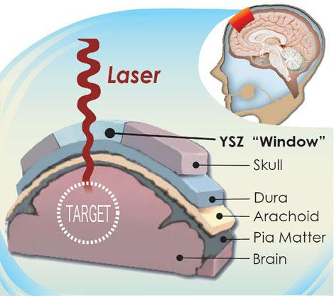 El implante transparente fabricado con YSZ se coloca en el cráneo y permite ver el cerebro.  Mayo Kodera.