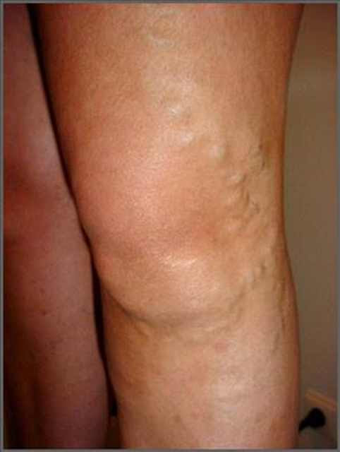 Home Remedies for Treating Varicose Veins Treating Varicose Veins- I THINK THIS WILL HELP United States of America of America PLACE YOUR COMMENTS THANKS