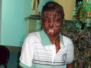 Garoto descobriu doença aos dois anos (Foto: Arquivo pessoal)