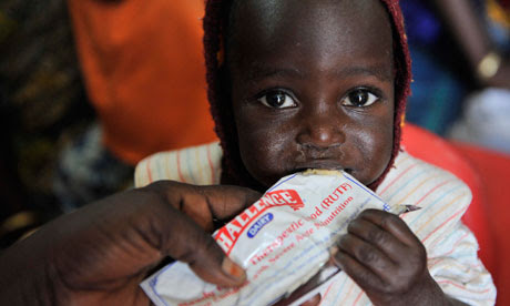 MDG : Food crisis in Sahael : Malnutrition in Niger