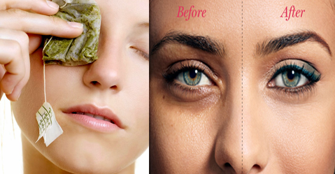 Home Remedies for Dark Circles and Puffy Eyes - Beauty Height