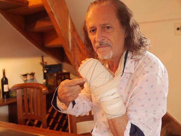 Alceu Valença teve que adiar show no Rio após fratura na mão esquerda (Foto: Reprodução / Facebook)