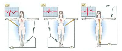 HMA/Pracs/Recording and interpretation of the ECG - StudyingMed