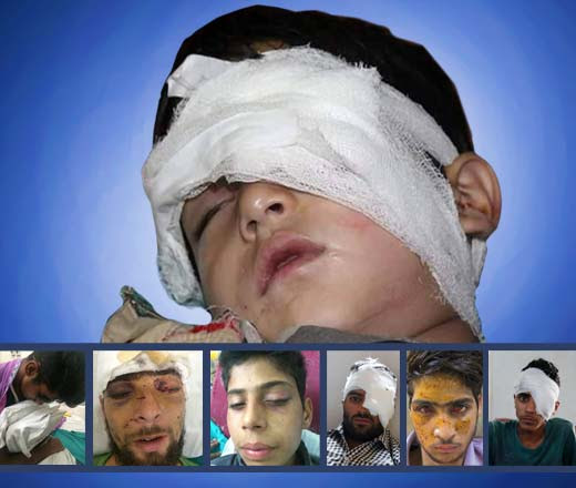 Some of the injured by pellet guns in Kashmir.