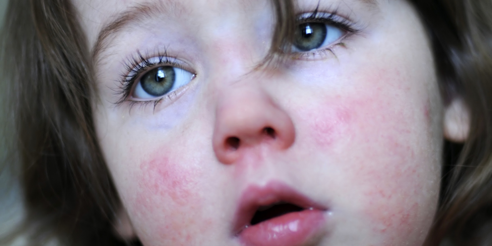 Itchy Rash in Children | New Health Guide