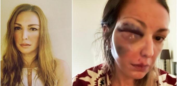 Θύμα άγριας κακοποίησης γνωστή food blogger – Σοκαριστικό στιγμιότυπο