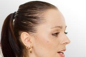 new photo blog perte de cheveux chez les femmes. Black Bedroom Furniture Sets. Home Design Ideas