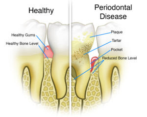 The Importance Of Healthy Gums Gum Disease Treatment Forest Hills Ny