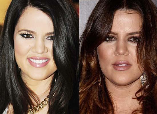 Blogging News Around World Khloe Kardashian Nose Job