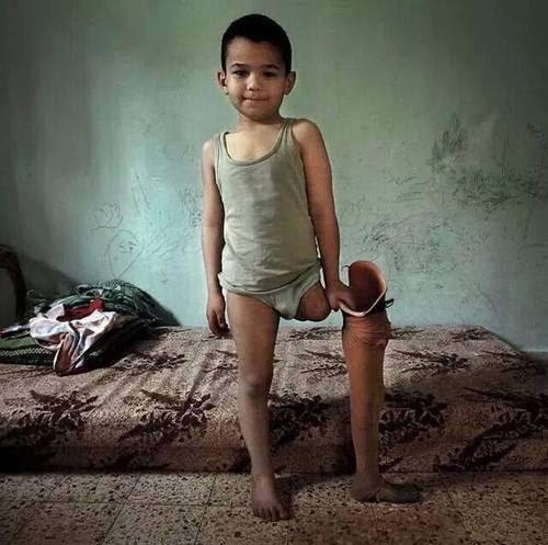 Gaza survivor 2015