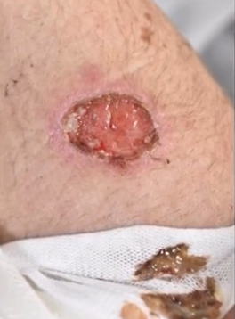 Teen's suffers 2-inch hole from iPhone