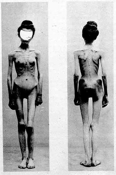 File:Anorexia case-1900-Nouvelle icononographie de la Salpetriere.jpg