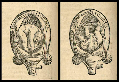 foetal positions - anatomical woodcut
