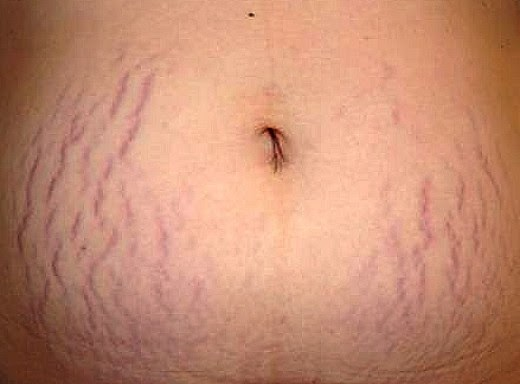 Remove Cellulite Surgically Cellulitis Treatment Home Remedy