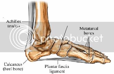 foot pain - stress fracture? — Runner's World UK Forum