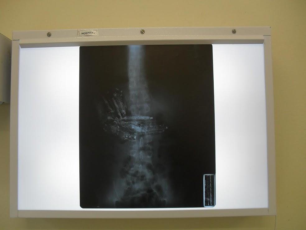 Preso foi submetido a uma cirurgia para a retirada dos celulares do estômago (Foto: SAP/Cedida)