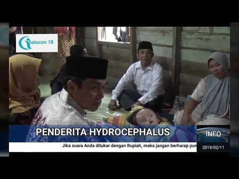 Bantu Penderita Hydrocephalus