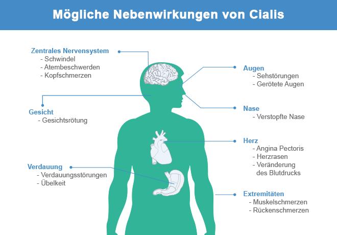 Nebenwirkungen Von Cialis 20mg Rezeptfrei In Deutschland