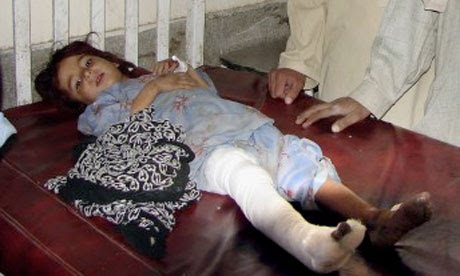 A six-year-old civilian victim of a US drone strike in Pakistan, 2009