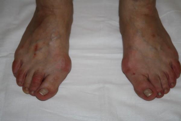 Косточки на ногах артроз плюсневого сустава причины и лечение