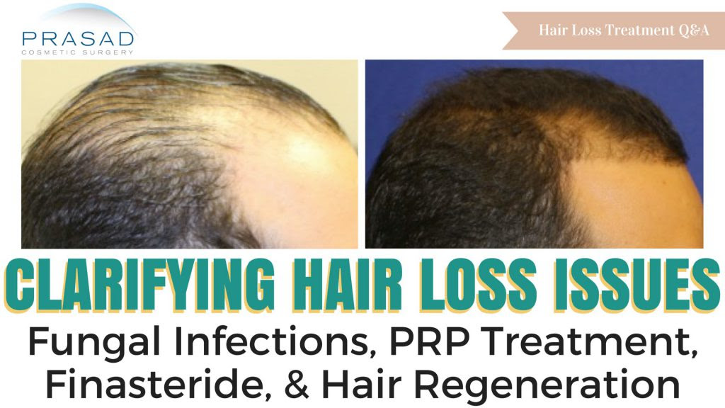 Finasteride Or Minoxidil All You Need To Know
