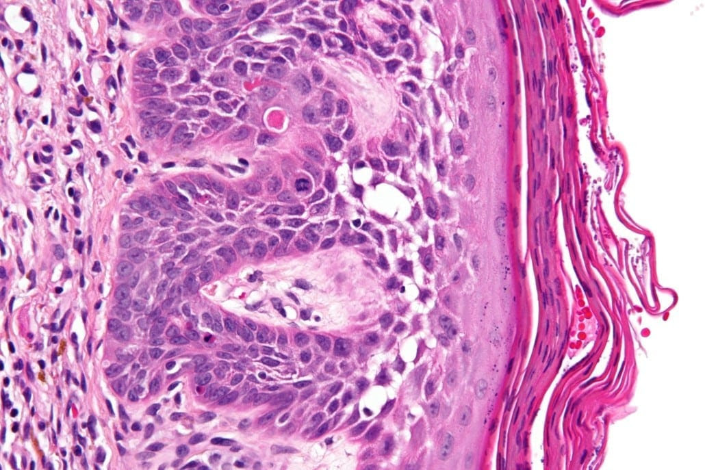 What is Actinic Keratosis? - Southeast Radiation Oncology ...