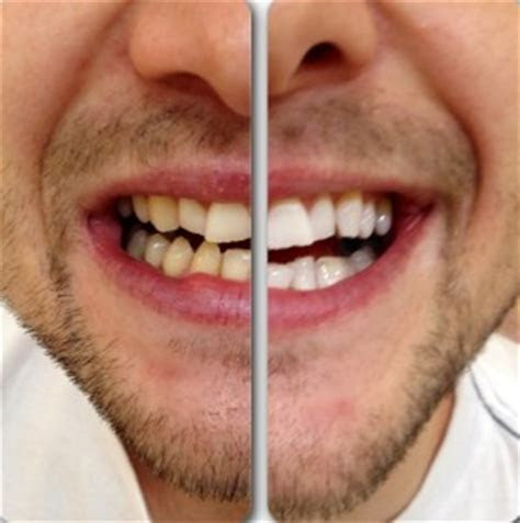 Teeth Whitening: All You Need to Know   PureSmile Australia
