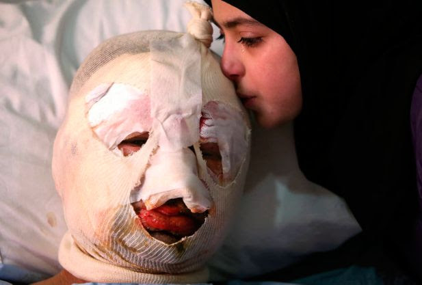Fatima, 13, weeps as she kisses her injured father, Ahmad al-Messmar, 40, who was wounded when a deadly car bomb blew up near a gas station, in the predominately Shiite town of Hermel, about 10 miles (16 kilometers) from the Syrian border in northeast Lebanon, Sunday, Feb. 2, 2014. A shadowy Lebanese Sunni extremist group claimed responsibility for a suicide car bombing in Hermel, a stronghold of Lebanon's militant Hezbollah group, that killed several people in the latest attack linked to the war in neighboring Syria.