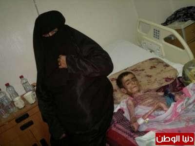 جلدي يحول سعودي هيكل عظمي شاهد الصور