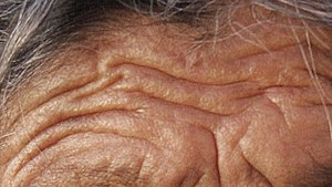 English: Skin folds of an old lady from Zacate...