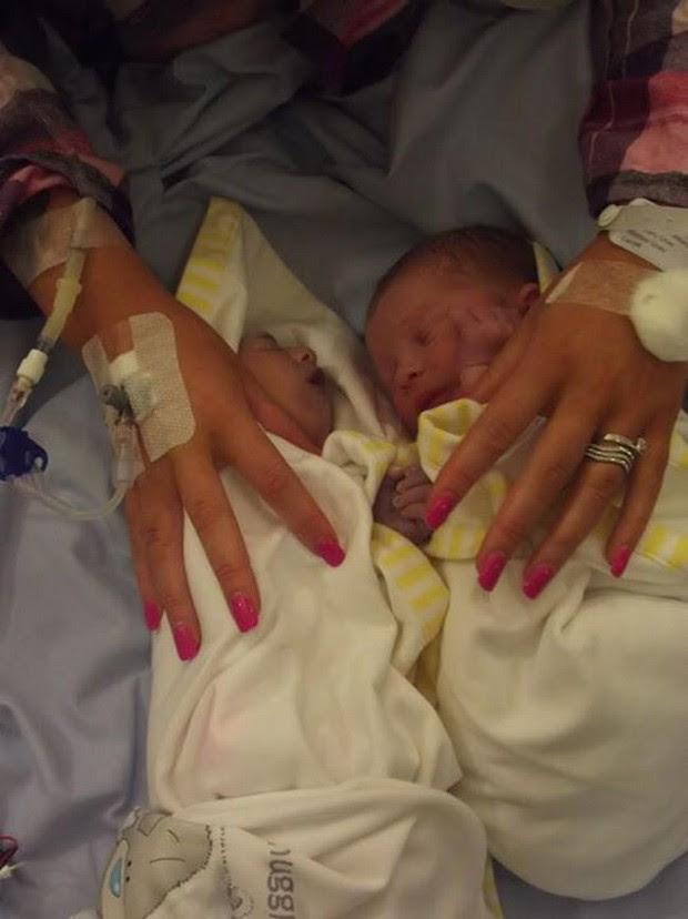 Gêmeos Teddy e Noah Houlston: Teddy nasceu com anencefalia e sobreviveu por apenas 100 minutos e teve seus órgãos doados (Foto: Reprodução/Facebook/NHS Organ Donation Campaign)