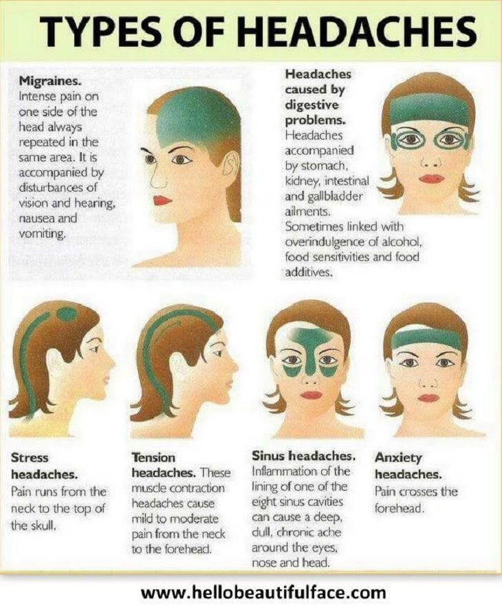 9 Handy Charts to Help Deal with Migraines | Health - BabaMail