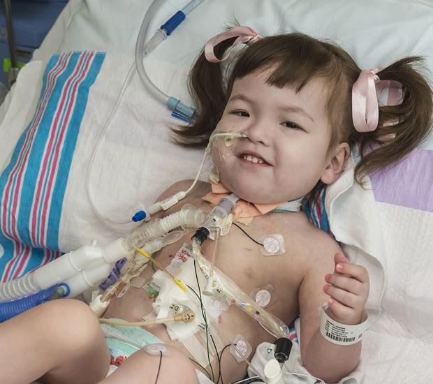 A menina Hannah Warren, de 2 anos, após a cirurgia de implantação da traqueia  (Foto: OSF Saint Francis Medical Center/AP)